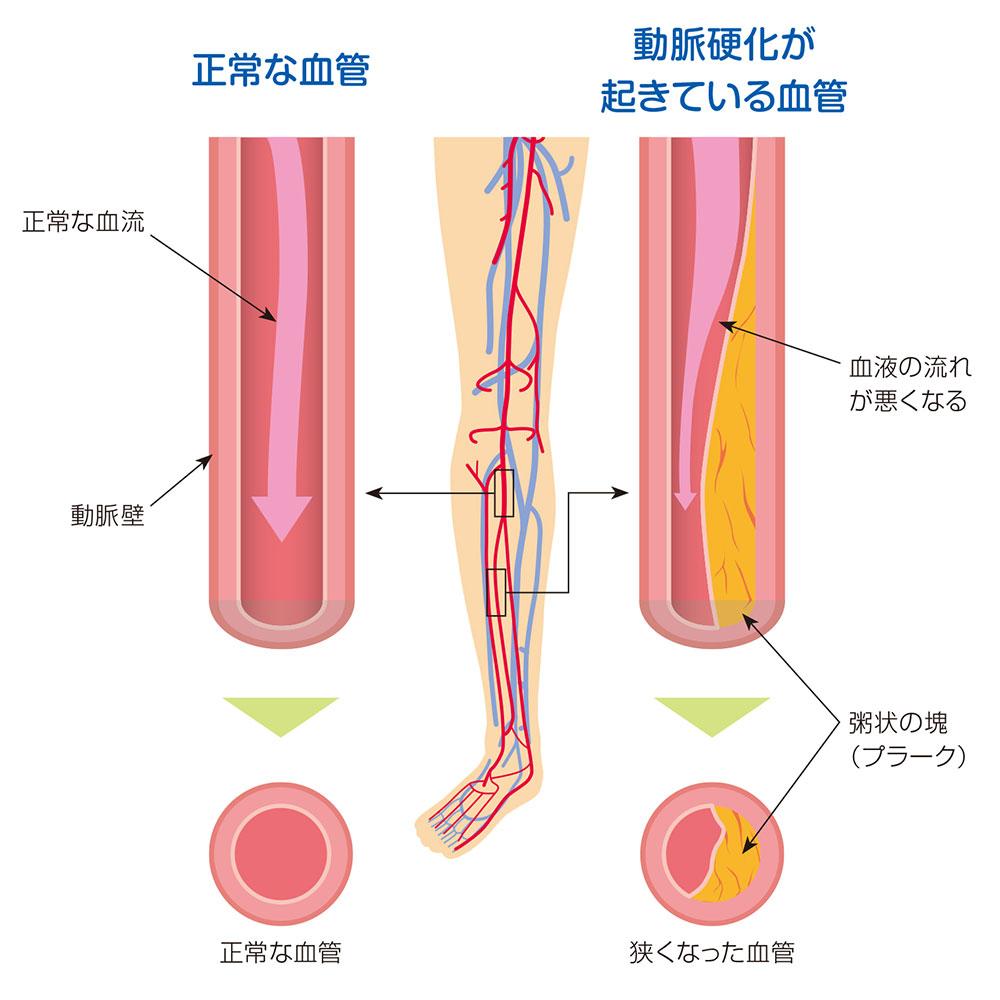 性 症 閉塞 動脈 硬化